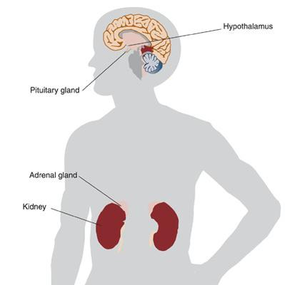 gallstones cleanse your colon